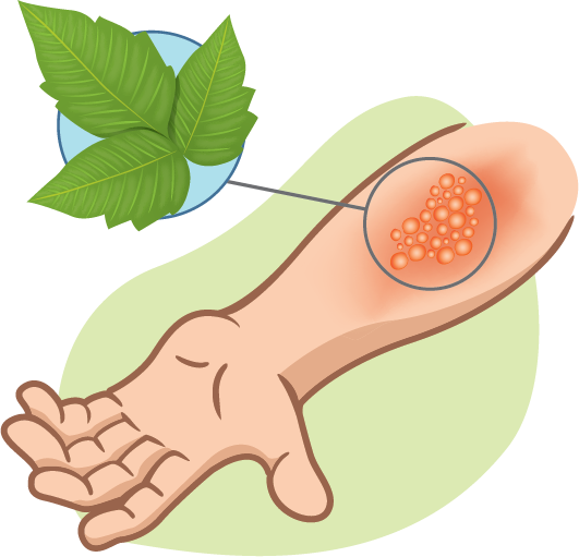 illustration of poison ivy localized skin reaction